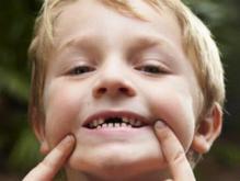 蛀牙如何让它停止腐蚀 做好预防是关键